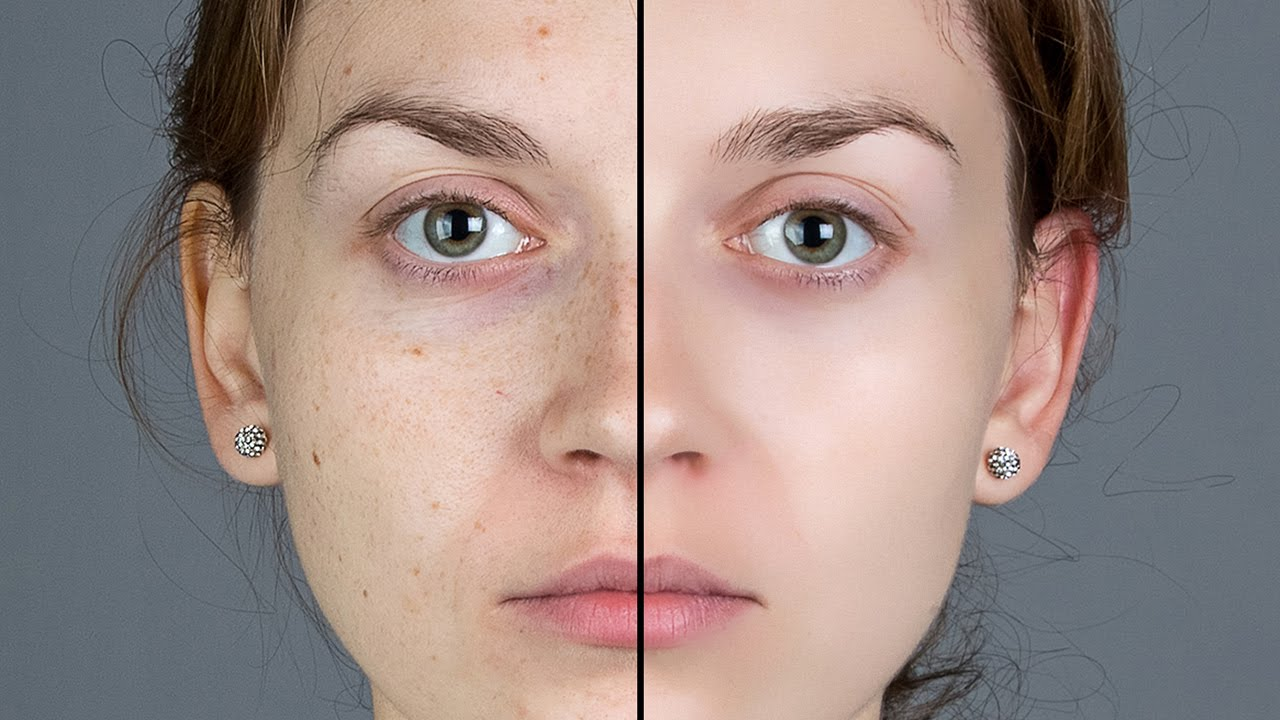 Photoshop-Smooth-Skin-and-Remove-Blemishes-Scars